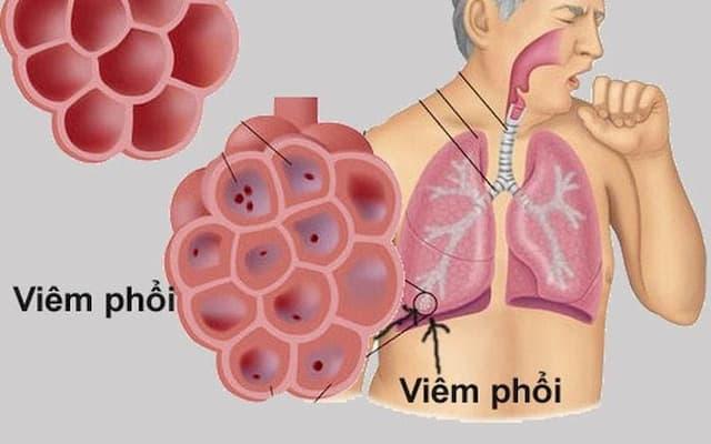 CBD hỗ trợ chữa trị các bệnh về viêm phổi