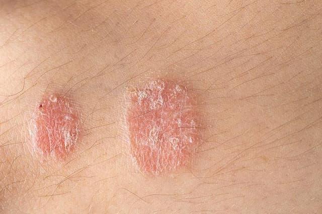 Căn bệnh vẩy nến là gì