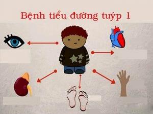 cbd-chua-benh-tieu-duong-1