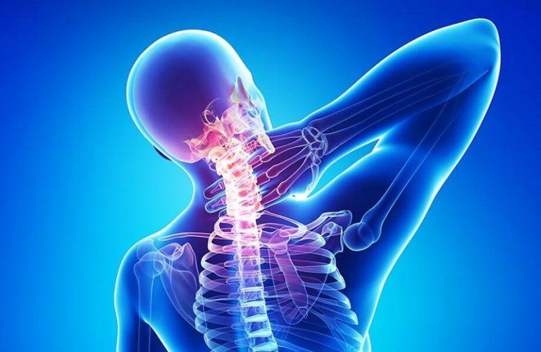 Nhân chứng sử dụng tinh dầu CBD chữa bệnh đau cổ vai gáy